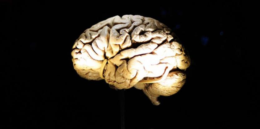 A 24 ans, elle apprend qu'il lui manque une partie du cerveau